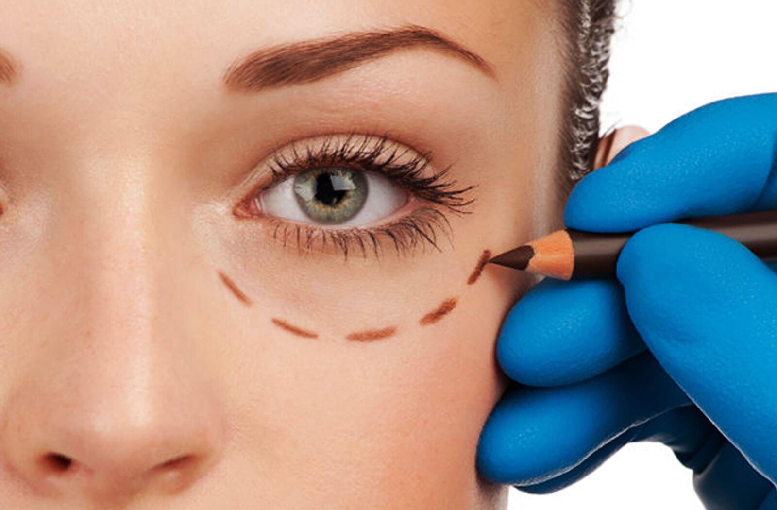 Orbit & Oculoplasty